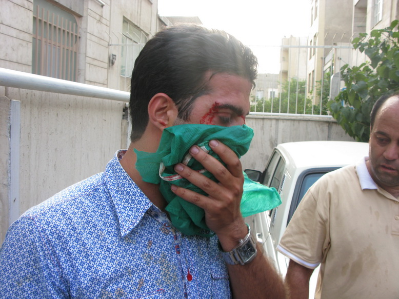 Wounded protestor