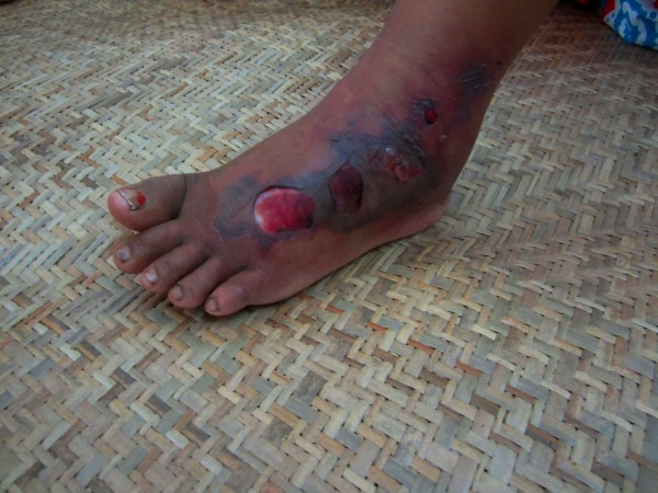 The wound on Day Wi's leg caused by a Russell's viper