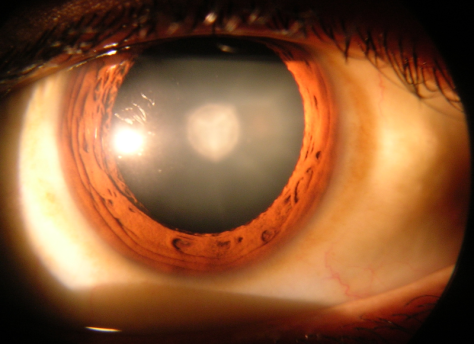 A cataract in the human eye. Source: Wikicommons